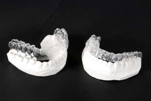 Clareamento Dentario Clareamento Clareamento De Dentes